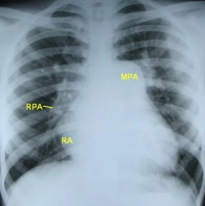 X-ray chest (CXR) PA view in severe pulmonary hypertension