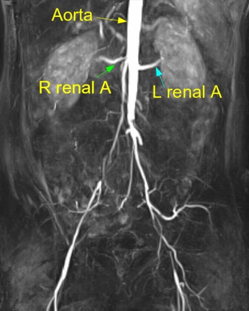 MR angio of aortoiliac disease