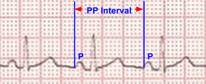 PP interval on ECG