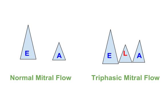 Triphasic left ventricular filling pattern