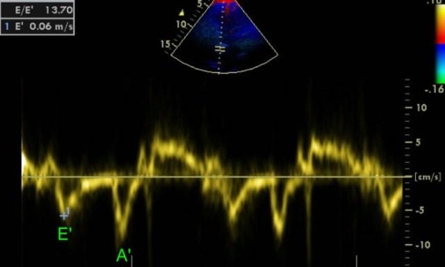 Mitral E/E' ratio on echocardiogram