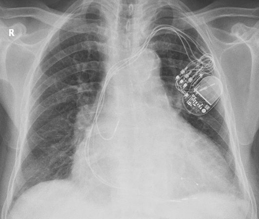 X-ray Chest in CRT showing pulse generator and three leads
