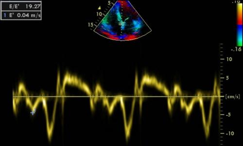 Peripheral Doppler Vascular