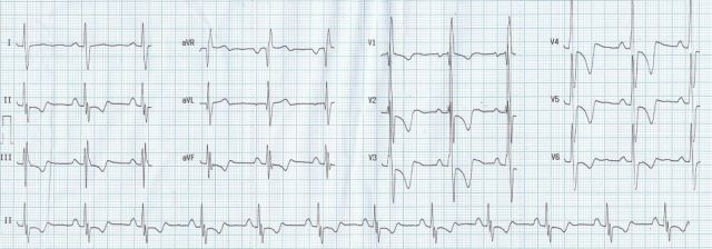 ECG in atrial septal defect with severe pulmonary hypertension