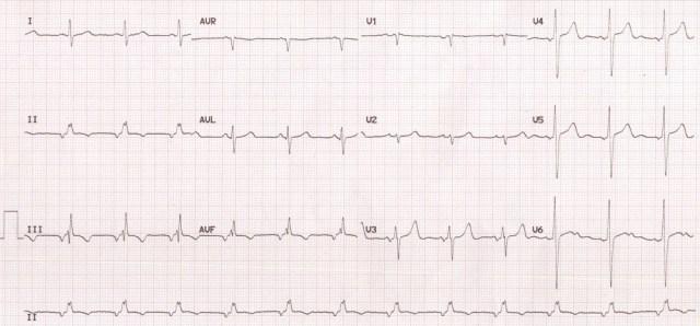 Low atrial rhythm