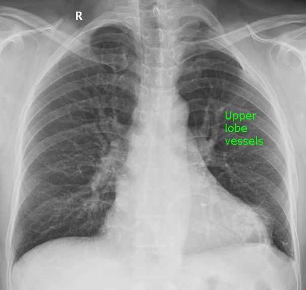 Prominent upper lobe vessels on chest X-ray