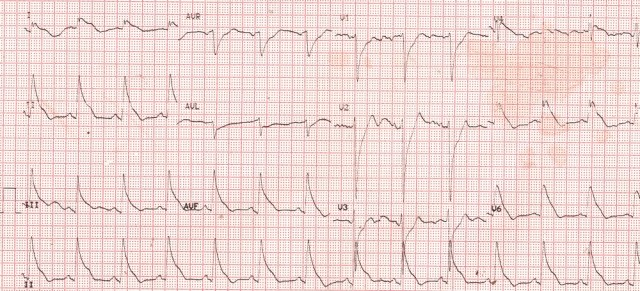 very-wide-qrs