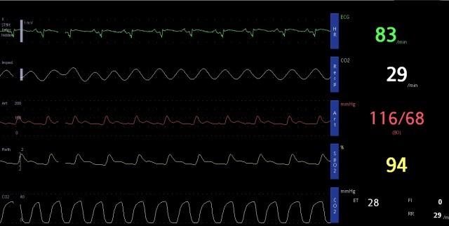 ETCO2 monitoring in ICU - capnography