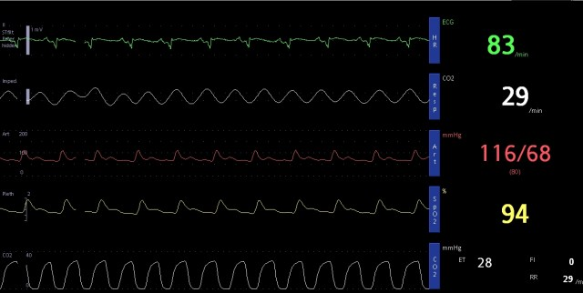 ETCO2 monitoring in ICU – capnography – All About Cardiovascular