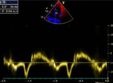 Mitral E/E' for assessment of left ventricular diastolic function
