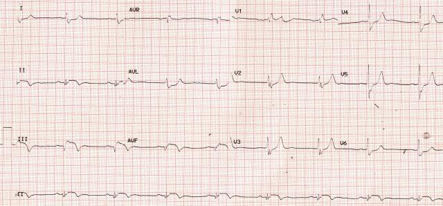 Evolved inferior wall myocardial infarction - ECG