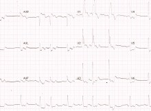 Left main coronary artery disease on ECG