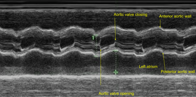 M-mode echocardiogram of aorta and left atrium