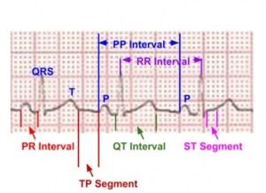 ECG Waves and Segments