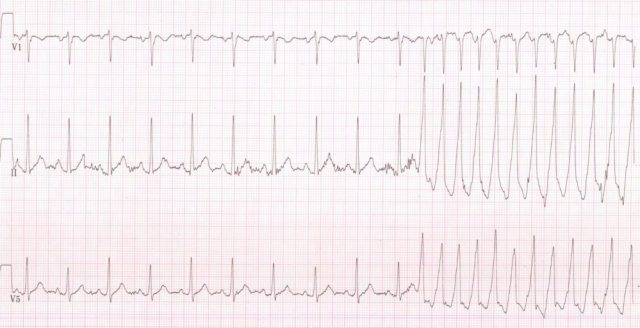 ECG showing VT occurring during an exercise test