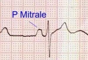 P mitrale in left atrial enlargement