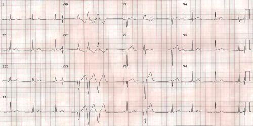 Salvo of ventricular premature complexes