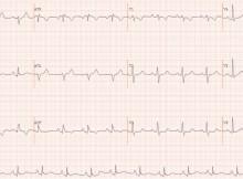 ECG in Ebstein's anomaly of tricuspid valve