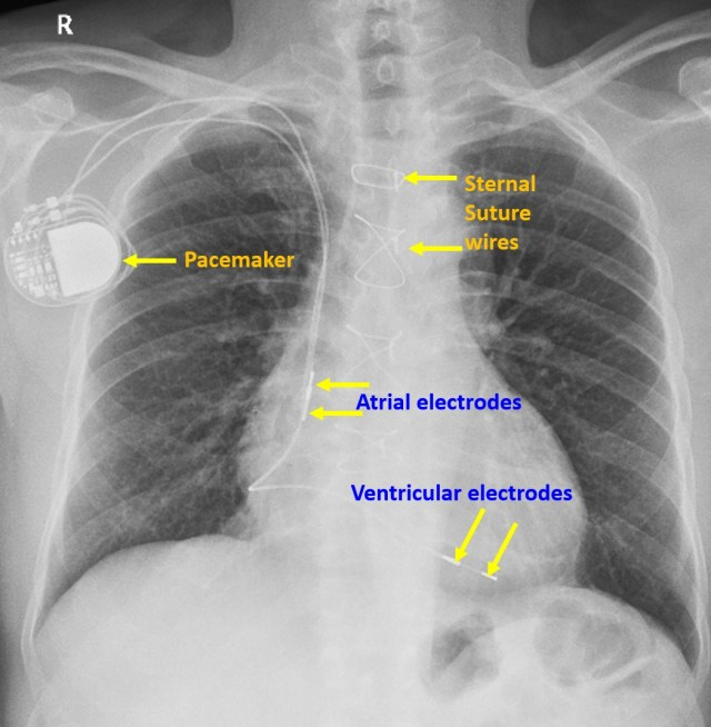 Dual chamber pacemaker with leads