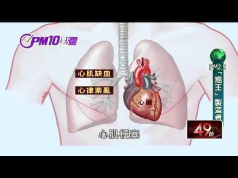 驚!台灣「癌王」肺腺癌 PM2.5是元凶?|PM10點靈|20160331|壹電視新聞 #トレンド #followme