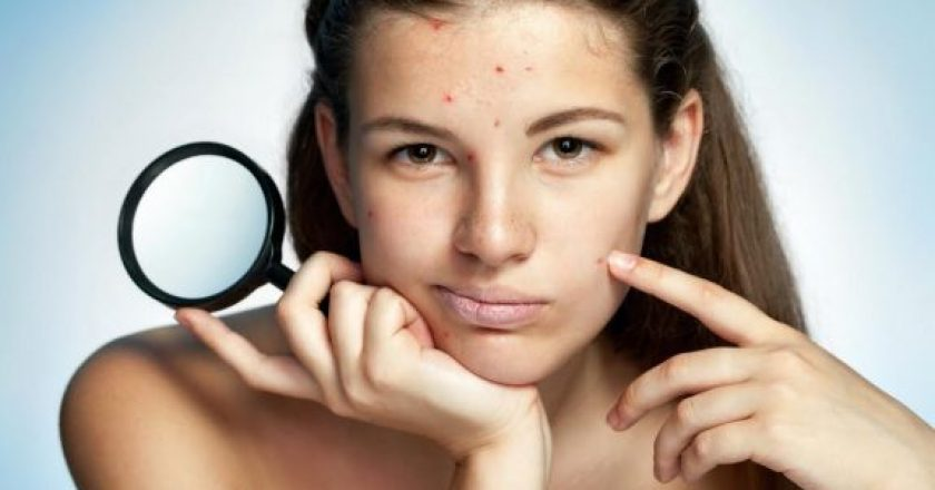 7-Beauty-Problems-That-Actually-Tell-The-Truth-About-Your-Health3-575x384-840x440
