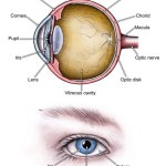 High Rise Of Glaucoma In U.S.A