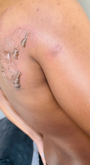 A South African Lady Physically Abused A South African Man Because Of This