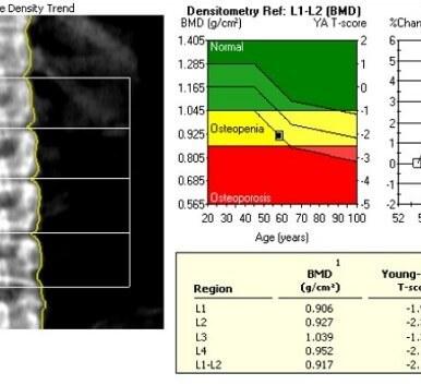 Densitometria óssea lombar