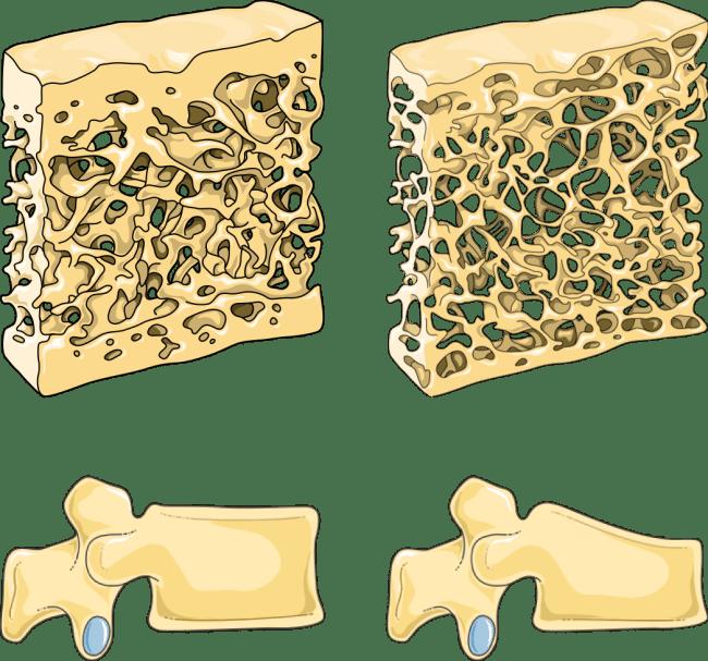 OSTEOPOROSE COMPARACAO