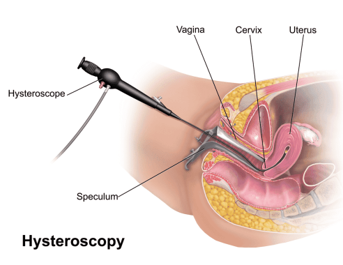 Cervical Cancer Biopsy