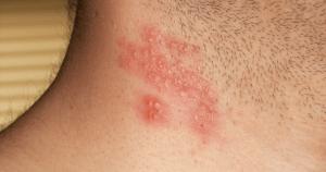Vírus do herpes-zoster está presente em 95% das pessoas