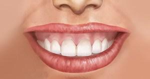 Nova classificação aprimora tratamento do sorriso gengival