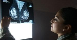 Mutações genéticas são principal causa do câncer de mama em jovens