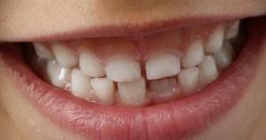 Em Ribeirão Preto, nível de chumbo em esmalte dental de criança cai 60%, mas ainda é alto