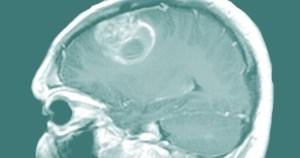 Painel de biomarcadores pode orientar o tratamento de câncer cerebral