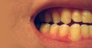Materiais bioativos ajudam a manter a saúde dos dentes