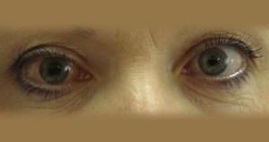 Hospital das Clínicas criou primeiro implante brasileiro para glaucoma