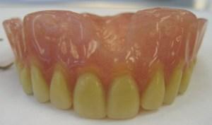 Material com nanopartículas de prata deixa dentadura mais confortável e higiênica