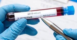 Reitor divulga novas medidas de restrição sobre coronavírus para a comunidade