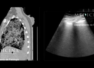 A tomografia computadorizada do tórax mostra sinais de pneumonia viral   Crédito: Departamento de Patologia da Faculdade de Medicina da USP