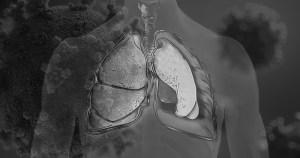 Covid-19 pode deixar sequelas que vão além do sistema respiratório