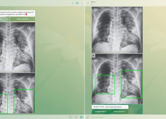 Com a Marie os agrupamentos das imagens já conseguiram detectar as diferenças entre as imagens de pulmões afetados pela covid-19 e as imagens daqueles afetados pela tuberculose