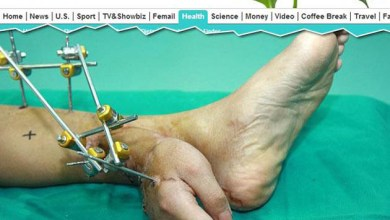 Photo of Mundo: Mão de jovem é reimplantada ao braço após um mês ligada ao tornozelo