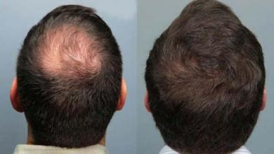Photo of Anvisa suspende propaganda de produto usado para queda de cabelo