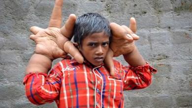 Photo of Menino de 8 anos tem mãos gigantes que pesam 13 quilos e medem 33 centímetros