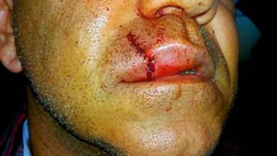 Photo of Chapada: Diretor de Cultura de Jacobina é agredido por maestro, diz secretária
