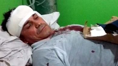 Photo of Chapada: Vereador de Ibiquera relata agressão na porta de casa: 'Bateram até quebrar machado'