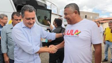 Photo of Deputado apoia decisão de Rui Costa em ampliar atendimento para pessoas com anemia falciforme