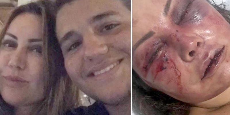 Mãe do lutador Rayron Gracie é espancada durante cerca de quatro horas e permanece hospitalizada