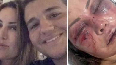 Photo of Mãe do lutador Rayron Gracie é espancada durante cerca de quatro horas; ela permanece hospitalizada